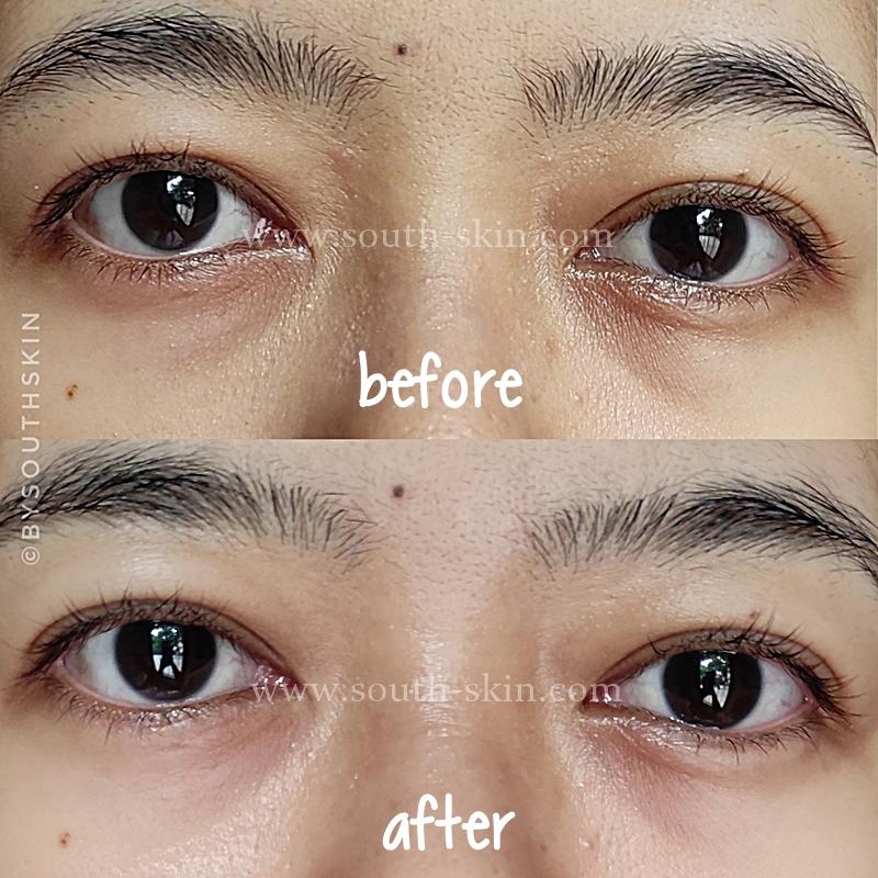 review-ertos-eye-bag-and-dark-circle-serum-southskin