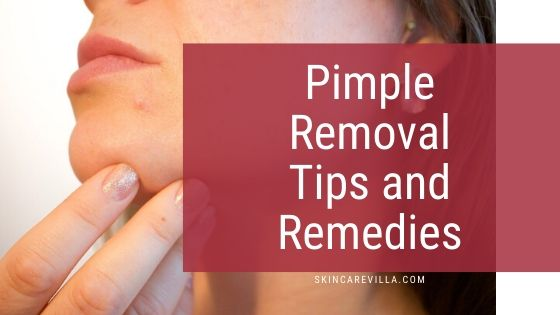 Pimple Removal Tips and Remedies