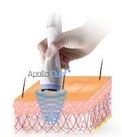 Apollo duet electroporation, Cosmetic penetration, Aesthetic device, cryo device, cryo electroporation