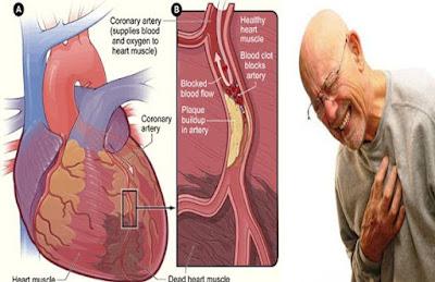 Gejala Jantung Koroner Dan Obatnya