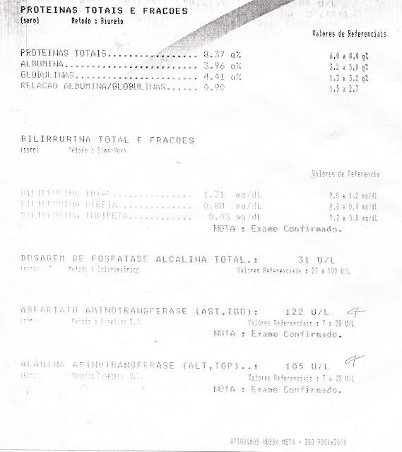 Resultado do meus exames (Paulo Rocha) feito no dia 27 de julho de 2003 - Proteínas Totais e Fraçoes