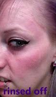 diy tca peel pain skin pink wash face