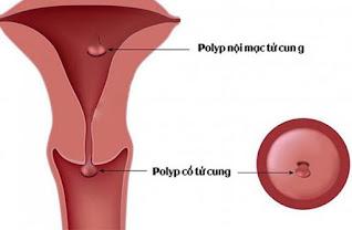cắt polyp cổ tử cung có nguy hiểm