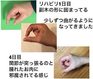 指の側副靭帯損傷のリハビリ成果