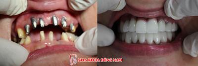 Cay Ghep Implant Co Tot Khong 5
