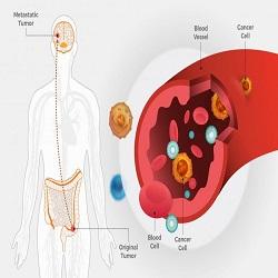 Câncer colorretal metastático pode se espalhar no início da doença