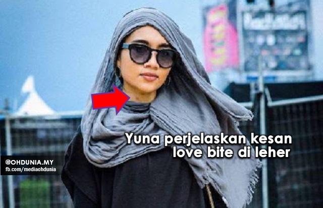 Yuna Perjelas Punca Kesan 'Love Bite' Di Lehernya