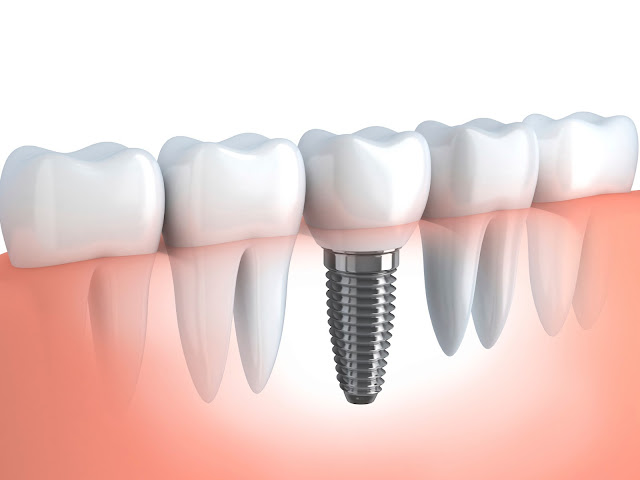 Dental Implants and his truth