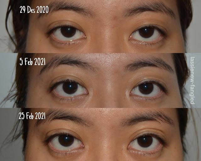 [Review] Avoskin Advanced Action Eye Ampoule: 3 Bulan Pemakaian