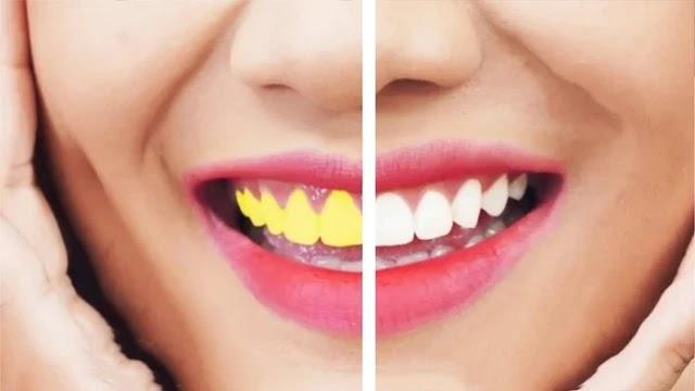 6 طرق فعالة لتبييض الأسنان في المنزل يجب تجربتها على الفور.