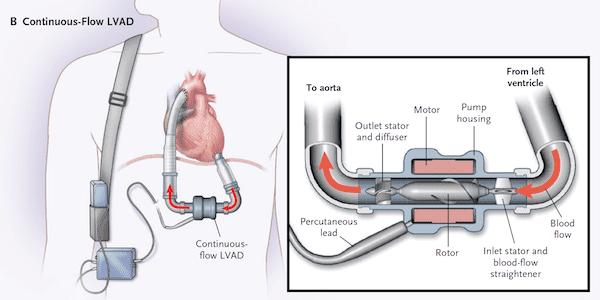 Left Ventricular Assist Device, Aka the Pump!