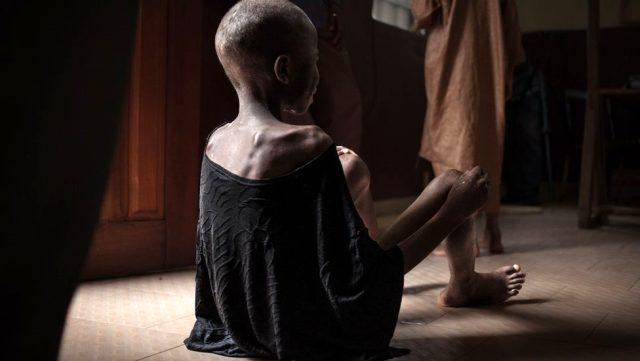 Dünya genelinde 821 milyondan fazla insan aç