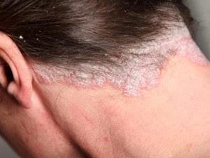 Obat alami eksim di kepala