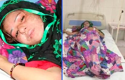 Супруг облил жену кислотой за то, что родила девочку – а он хотел мальчика!
