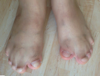 Webbed toes in a patient with Apert syndrome pictures