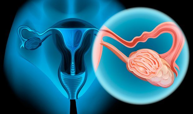 SALUD: Los iPARP amplían su indicación en los pacientes con cáncer de ovario.