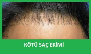 kötü saç ekimleri
