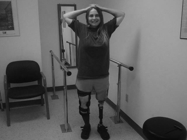 One-Leg Liz: You Say Prosthetist