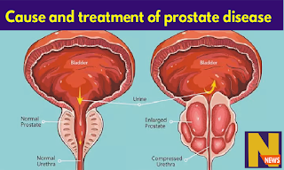 what causes prostate disease and bet prostate disease treatment