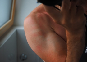 Picture of sunburn.