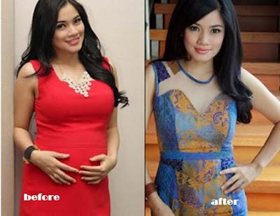 Perawatan Tubuh Titi Kamal di Sanova Skin Care Sedot Lemak Langsing