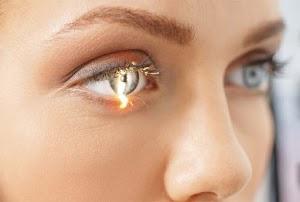 Penyebab dan Gejala Penyakit Glaukoma