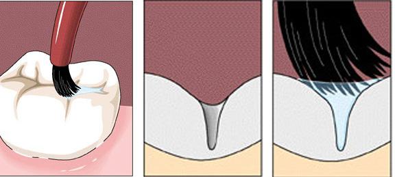દાંતમાં સાંકડા ખાડા અને તિરાડો