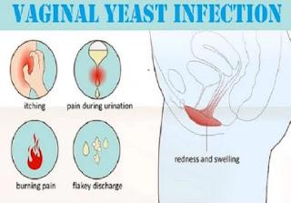 vaginal yeastinfection_ichhori