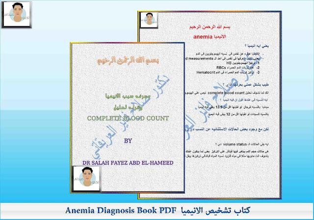 كتاب تشخيص الانيمياAnemia Diagnosis Book PDF
