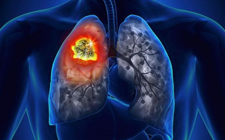 Carcinoid Tumor Lung Prognosis, Symptoms, And Treatment