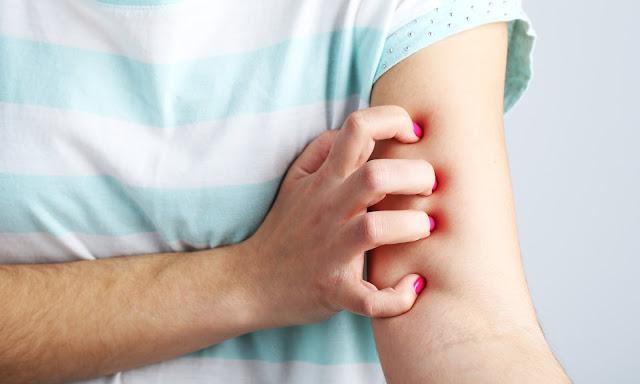 Meski Ciri Penyakit Ginjal Samar-samar, Penyakit ini Bisa Berakibat Fatal