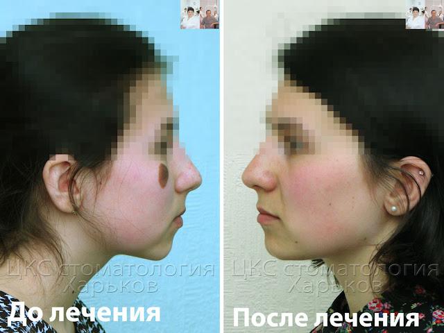 Фото профиль  до и после лечения  брекетами