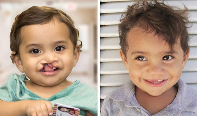 Operação Sorriso do Brasil, A ONG Operação Sorriso estará em Mossoró no dia 04 de agosto e oferecerá 45 cirurgias reparadoras gratuitas.