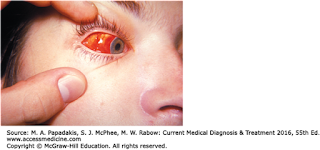 Gejala Campak/ Measles/ morbili/ rubeola , cara pengobatan dan komplikasinya