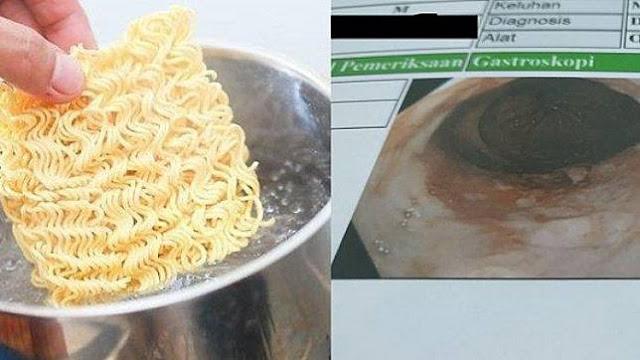 Akibat Sering Makan Mi Instan, Anak Kos Ini Akhirnya Menyesal, Lihat Foto Pencernaannya!