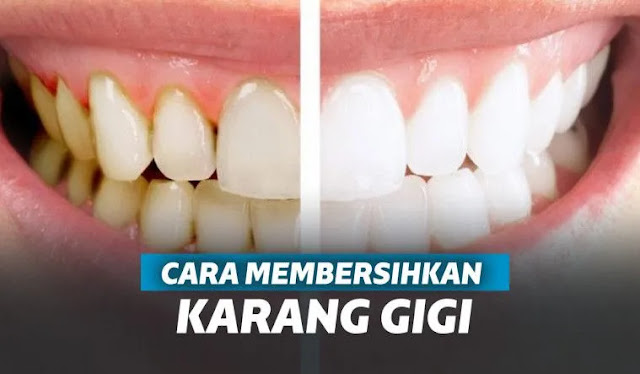 Karang gigi tak hanya mengurangi rasa percaya diri. Dari sisi medis, karang gigi juga menjadi penyebab munculnya penyakit-penyakit gigi seperti radang gusi. Karenanya karang gigi harus segera dibersihkan.