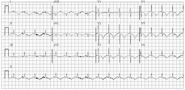 ECG in stroke