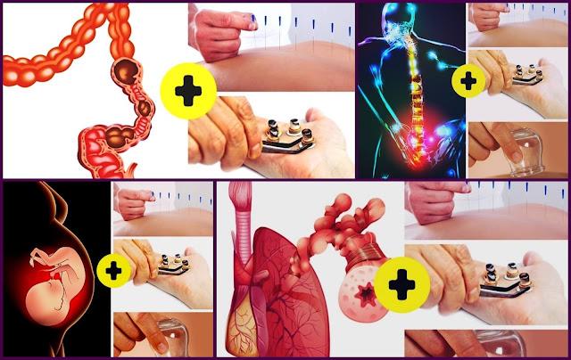 الممارسات الطبية الصينية التقليدية التي تساعد على شفاء جسمك من مجموعة متنوعة من الوضعيات الصحية
