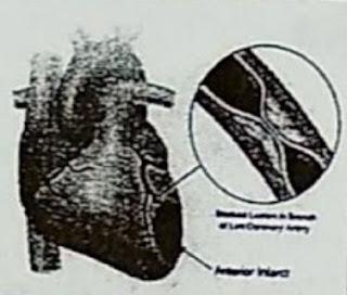 Perhatikan gambar jantung dan pembuluh darah di bawah ini ...
