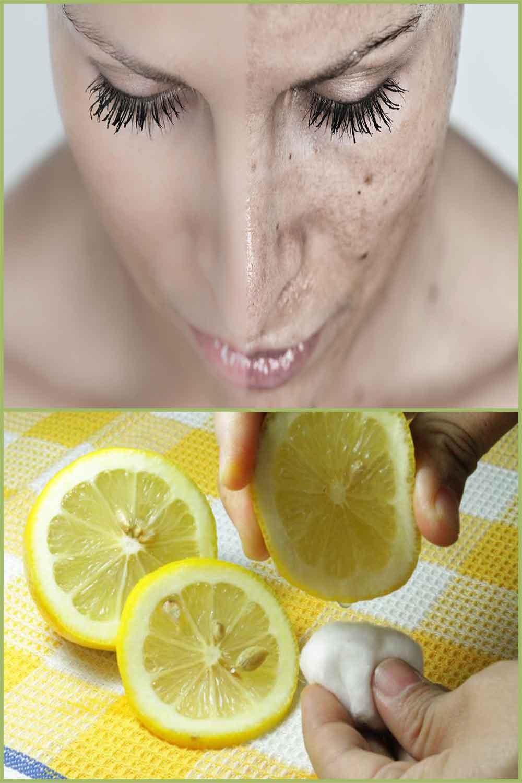 Remèdes à la maison pour éliminer naturellement les cellules mortes de la peau