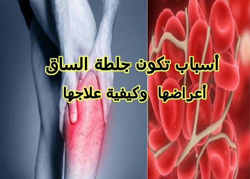 أسباب تكون جلطة الساق: أعراضها وكيفية علاجها