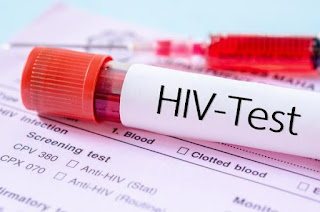 Blood group that can resist hiv