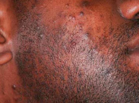 conseils pour se d barrasser des poils incarn s essentiel pour homme. Black Bedroom Furniture Sets. Home Design Ideas