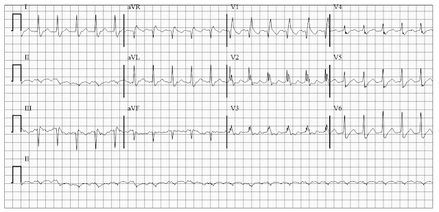 ECG of Atrial Flutter with bifasicular block