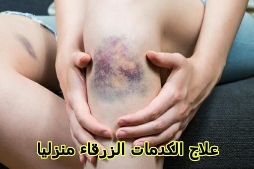 علاج الكدمات الزرقاء منزليا