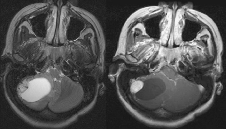 Neuroradiology Cases: 01/11/12 - 01/12/12
