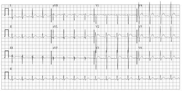 ECG of hypercalcemia