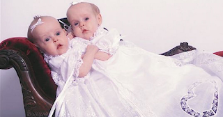 To 2002 γεννήθηκαν τα πιο σπάνια δίδυμα σιαμαία. Σήμερα είναι δυο πανέμορφες κοπέλες που ζουν ξεχωριστά τη ζωή τους