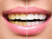 5 Cara Memutihkan Gigi yang Alami, Efektif dan Ampuh