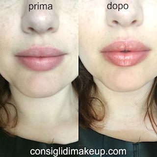 prima e dopo trattamento labbra glamglow
